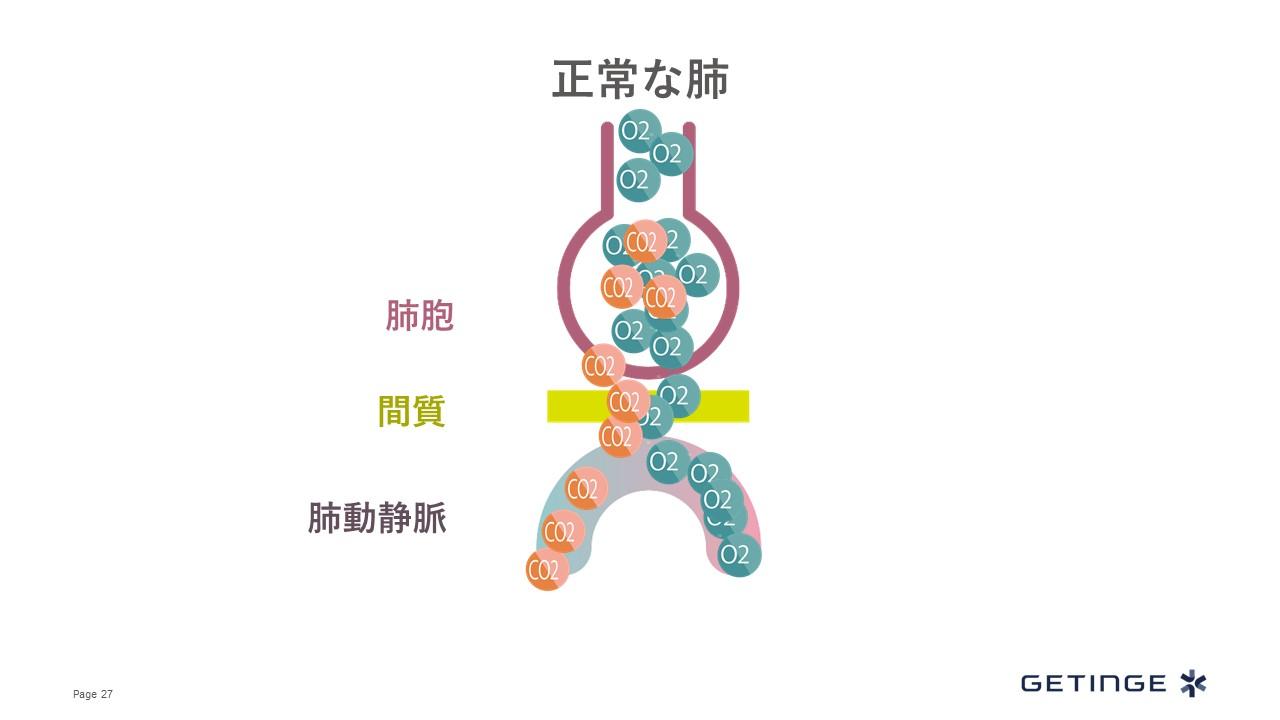 循環呼吸動態講義4:呼吸不全