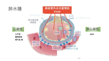 【循環呼吸動態について知識を深めよう】10 肺血管外水分量とは